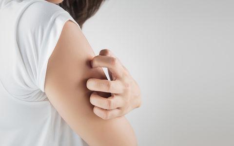 perioral dermatitt smitte